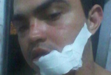 Policial militar fica ferido após ser atingido por pipa com cerol em Fortaleza