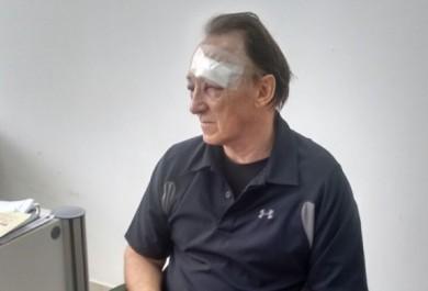 Turista americano tem rosto desfigurado em assalto na Beira Mar